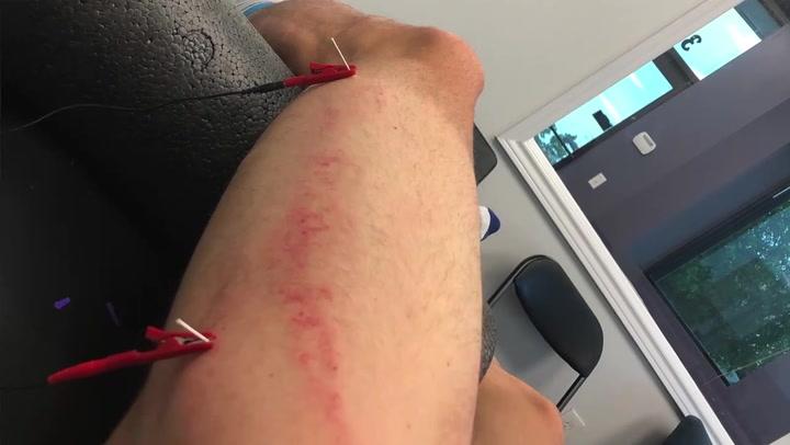 Suspenden por dopaje a un campeón del Ironman de Hawai tras contarlo en Facebook