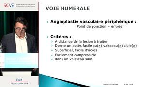 La voix humérale : une approche sûre et performante pour les angioplasties périphériques.
