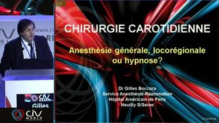 Anesthésie locale ou générale, hypnose : quelles nouvelles données pour mieux choisir ?