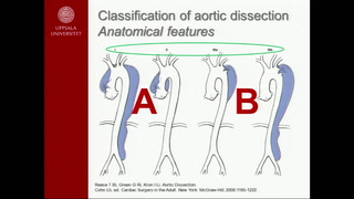Are stent grafts for acute type B dissection durable?