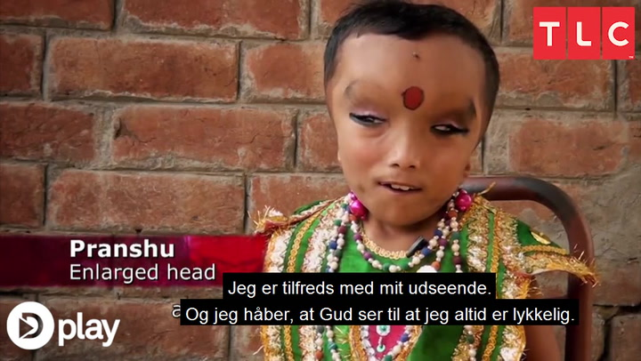 8-årig ligner gud: Tilbedes af lokalbefolkningen