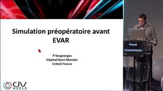 Simulation chirurgicale préopératoire avant EVAR
