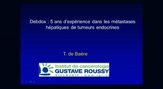 Debdox : 5 ans d'expérience dans les métastases de tumeurs hépatiques endocrines