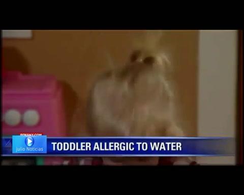 El extraño caso de una nena que no puede bañarse ni llorar