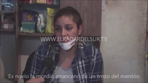 Hombre le desfigura a mordidas la cara a su exnovia en Argentina