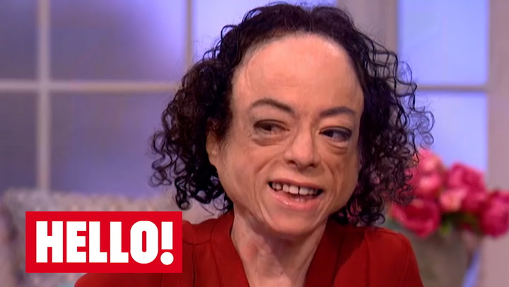 Liz Carr Who Is The Silent Witness Star S Partner Hello