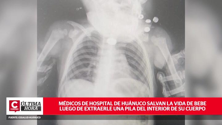 Bebé con pila alojada en su esófago fue operada con éxito por médicos en Huánuco