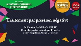 Traitement par pression négative (TPN)