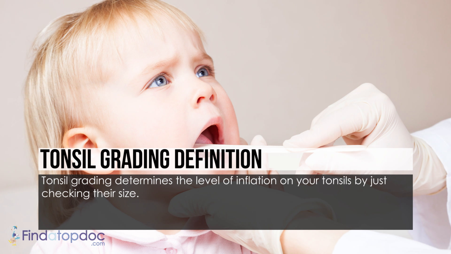 What Is Tonsil Grading Symptoms Size And System