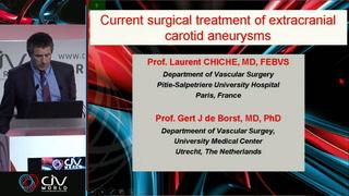 Chirurgie des anévrysmes de la carotide interne cervicale