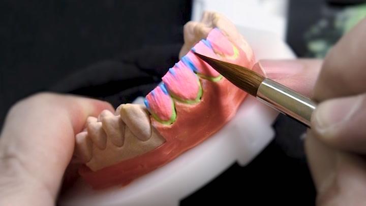This celebrity dentist crafts $80,000 porcelain veneers for celebrities