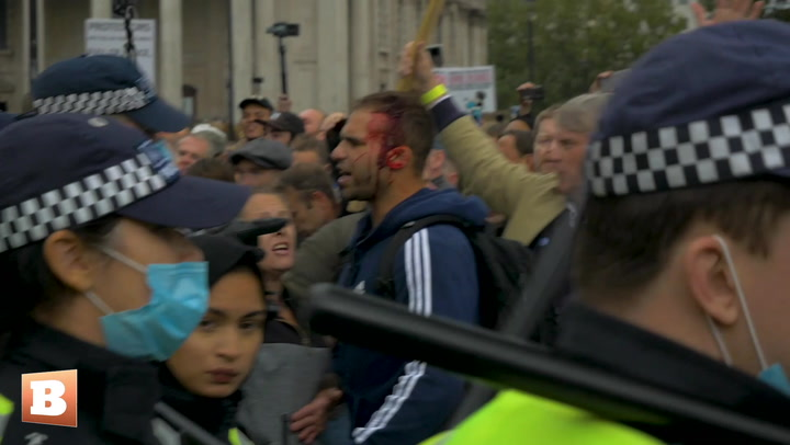 Police Violently Shut Down Anti-Lockdown Protest in London