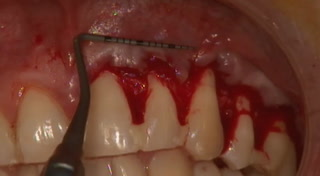 Chirurgie en direct - Partie 2