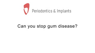 Can you stop gum disease?