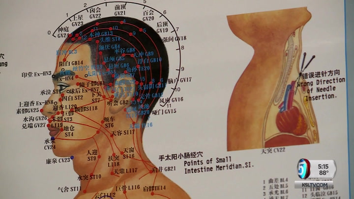 Utah Woman Turns To Acupuncture To Find Neck Pain, Migraine Relief
