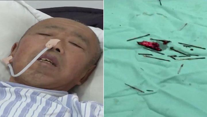Mannen klaget på magesmerter – kirurgene gjorde skrekkfunn