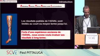 Traitement des varices par ASVAL : résultats à 10 ans