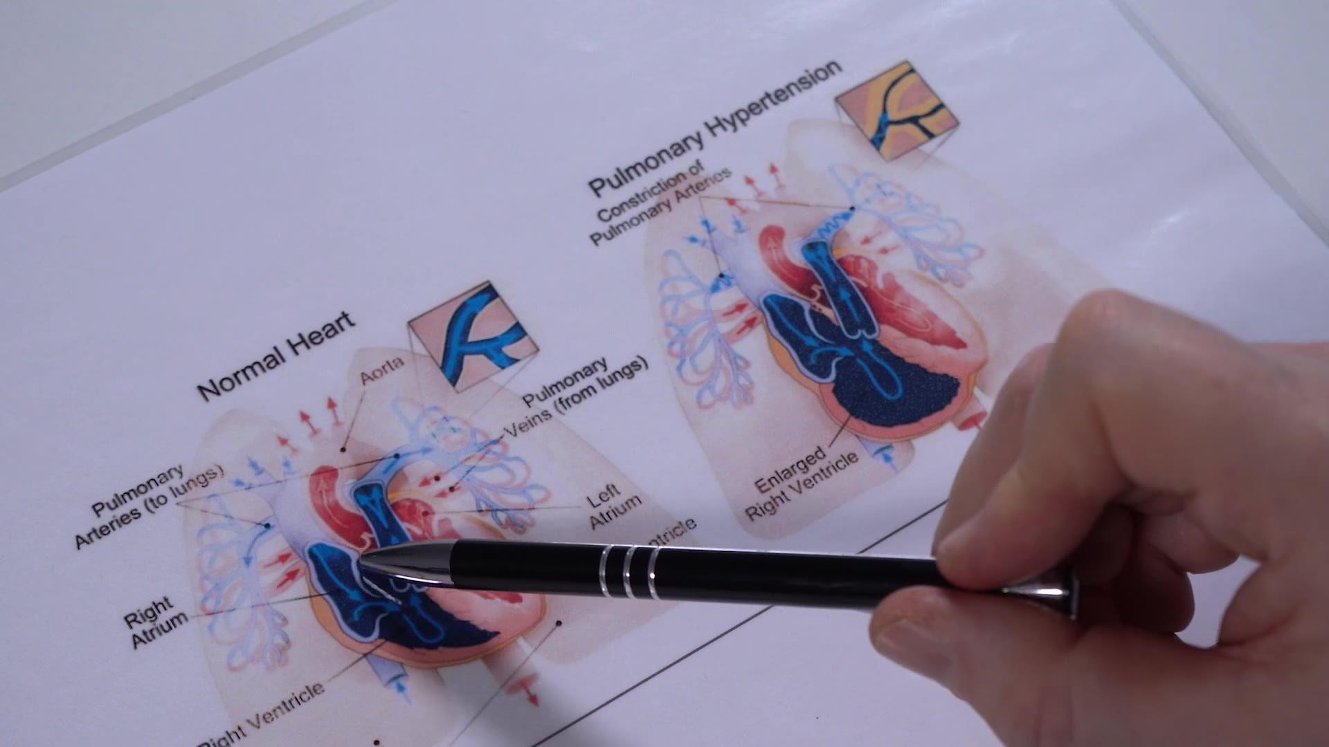 magas vérnyomás és ízületi gyulladás hipertóniával járó megfázást kezelni