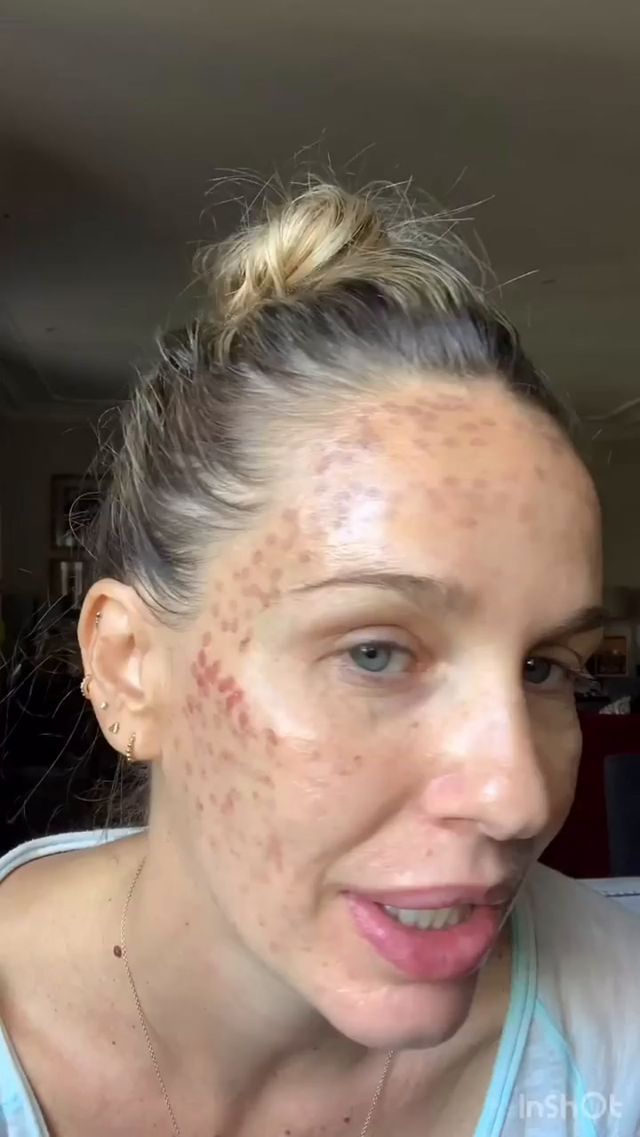 Carola Baleztena causa impacto con la cara quemada por un tratamiento estético