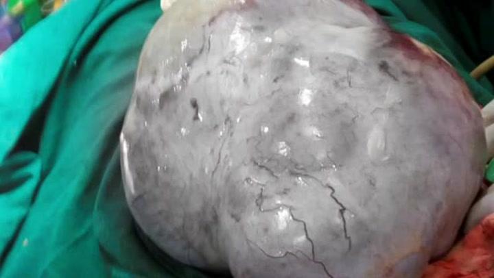 Troede hun var gravid, men havde verdens største cyste