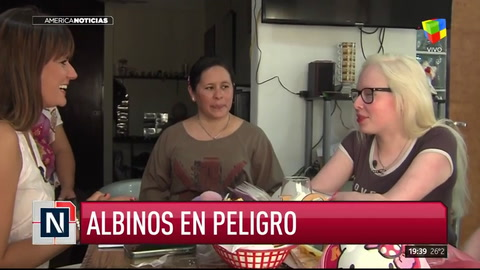 Albinos en peligro: una causa que alcanza a 2500 argentinos