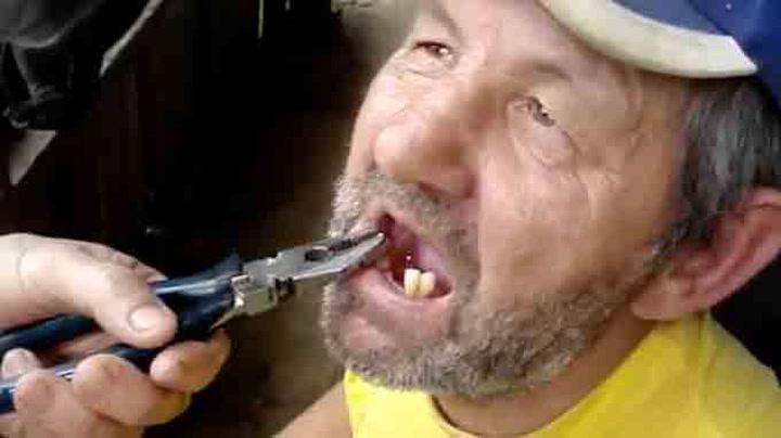 Lei dyr tannlegeregning? Bruk tang da vel