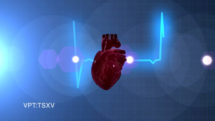 Ventripoint Technology to Capture a 3D Hologram of Your Heart