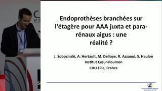Endoprothèses branchées sur l