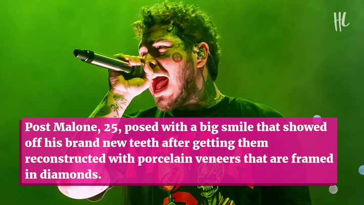 Post Malone Spends $1.6 Million On New Smile With Diamond Vampire Fangs