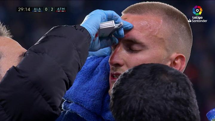 LaLiga: Alavés - Atlético Madrid. Rodrigo Ely se hace una brecha en la cabeza tras un encontronazo con Godín en el minuto 27