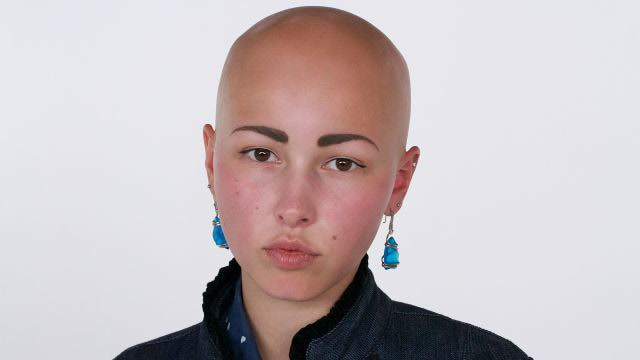 What Makes This Woman with Alopecia Feel Beautiful