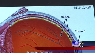 Doctors prep for solar eclipse and possible damages it may cause