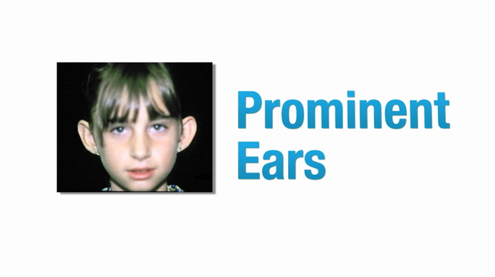 No Surgery with Protruding Ears, Prominent Ear Treatment